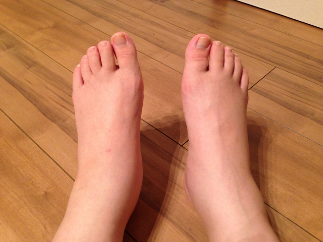 foot-swelling.png